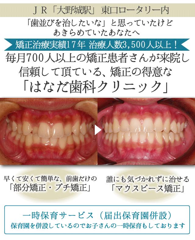 JR「大野城駅」 東口ロータリー内   歯並びを治したいなと思っていたけど あきらめていたあなたへ   矯正治療実績17年 治療人数3500人以上!   毎月700人以上の矯正患者さんが来院し 信頼して頂ている、矯正の得意な「はなだ歯科クリニック」   ヘッド     →     早くて安くて簡単な、「前歯だけの部分矯正・プチ矯正」 誰にも気づかれずに治せる「マウスピース矯正」   無料一時保育サービス(届出保育園併設) 保育園を併設しているのでお子さんの一時保育もしております   無料カウンセリング実施中!   無料カウンセリングにお越し頂いた皆さまに 当院の「プチ矯正」 「マウスピース矯正」冊子をプレゼント!